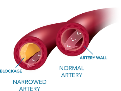 Artery Comparison